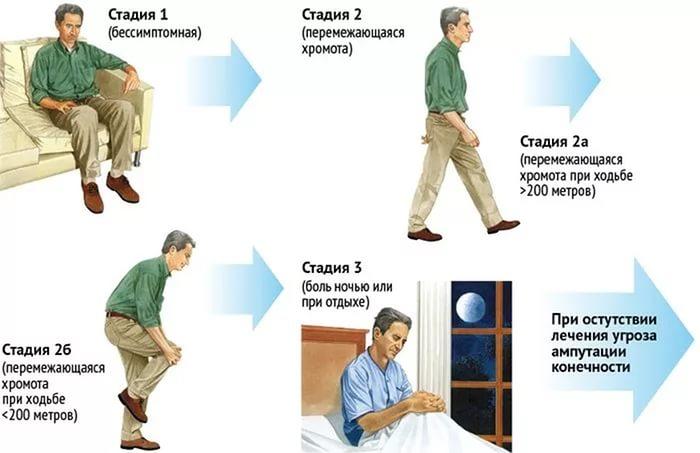 Ишемия при атеросклерозе