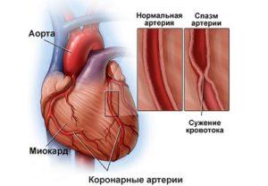 Сокращение кровотока