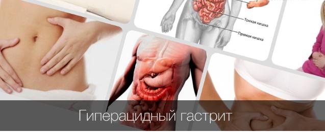 гиперацидный гастрит