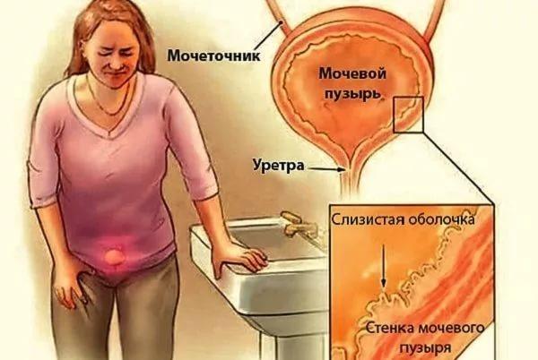 боль в мочеточнике