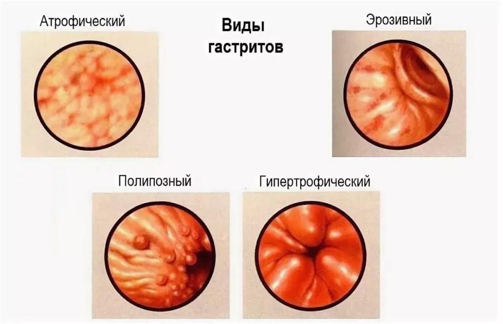 гиперпластический гастрит что это такое