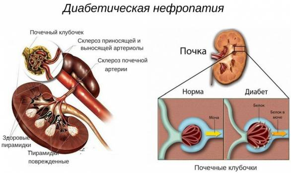 диабетическая форма болезни
