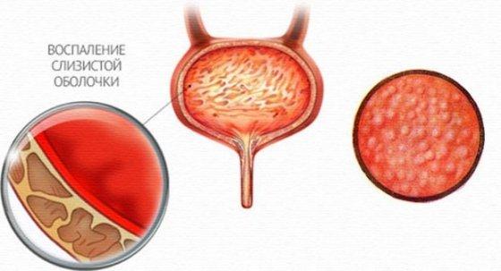 Геморрагический цистит