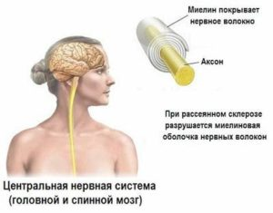 Магистральные артерии головы