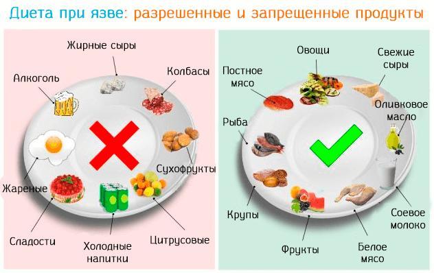 диета номер 1 при язве желудка