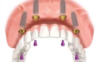 Крепление протеза на 4 имплантах