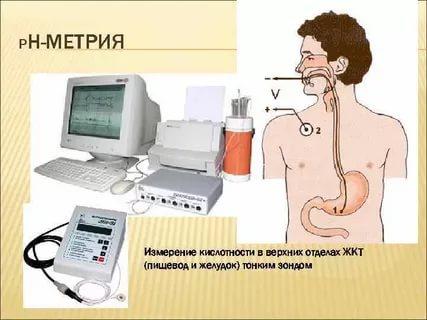острый гастрит диагностика