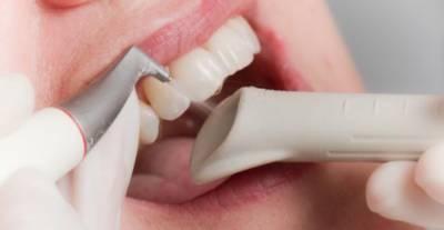 Полировка зубов аппаратом