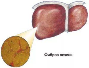 Активные стадии болезней печени