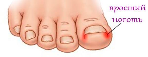 Что делать при врастании ногтя