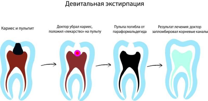Девитальный метод лечения пульпита