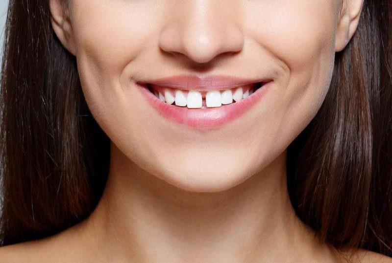 Девушка с щелью между зубами
