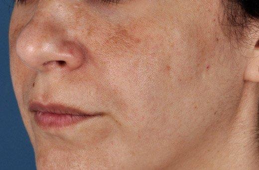пигментные пятна на лице