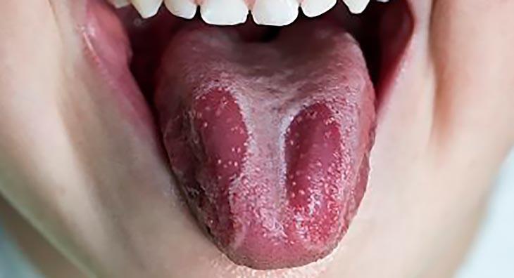 Кандидоз в полости рта фото