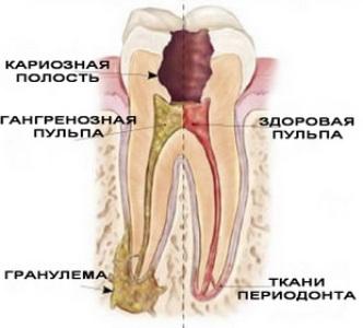 Гранулема зуба - схема