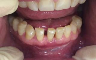 Деформация зубов