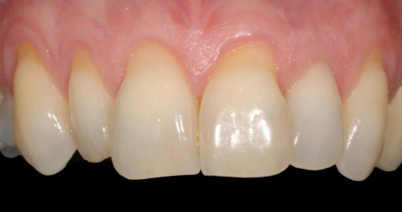 Оголение зубных корней