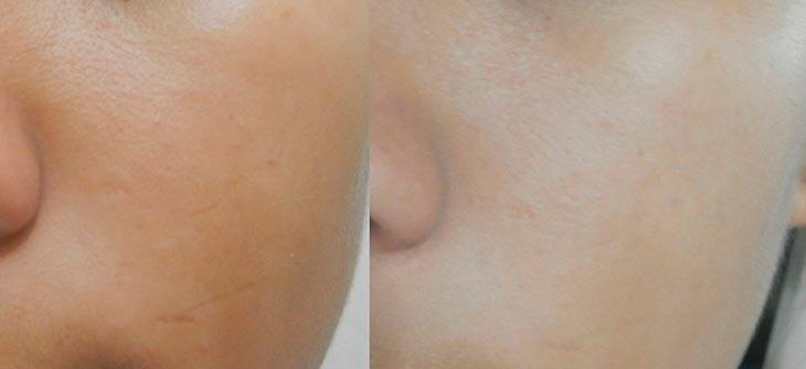 Осветление кожи масками, фото до и после процедур