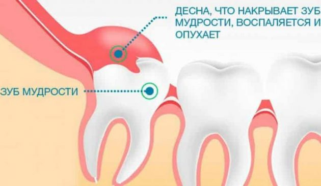 Прорезывание зуба мудрости