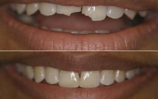 До и после наращивания передних зубов