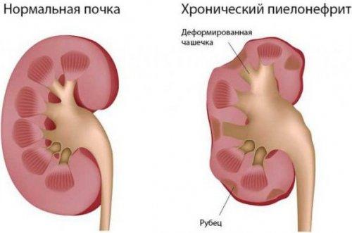 Признаки и лечение хронического пиелонефрита
