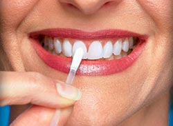 Плюсы и минусы домашнего отбеливания зубов