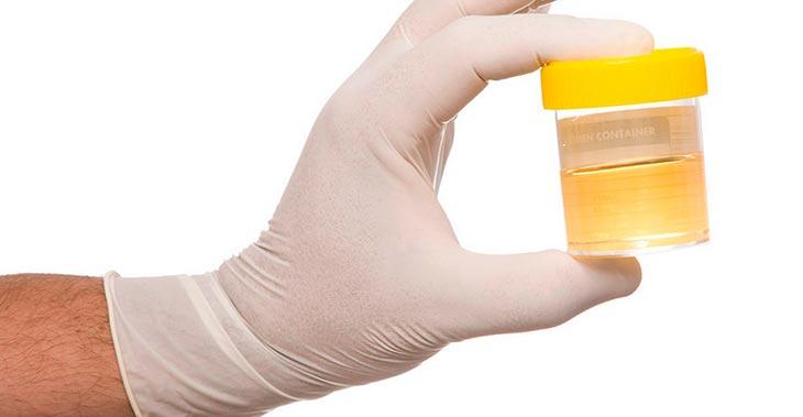 Повышенный уровень лейкоцитов в моче