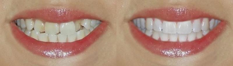 Прямая реставрация до и после процедуры