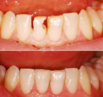 Прямая реставрация передних зубов
