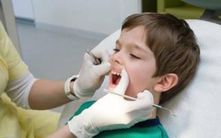 Ребенок у стоматолога