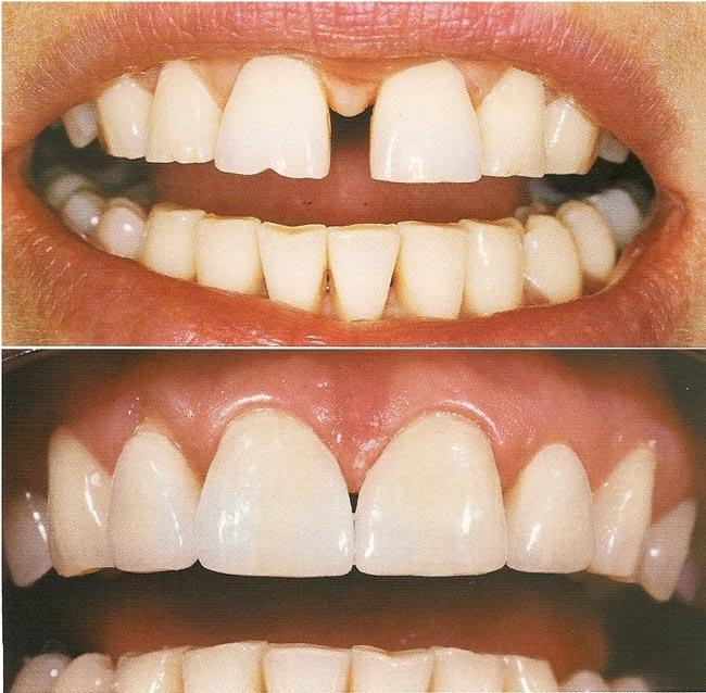 Реставрация зубов пломбировочным материалом
