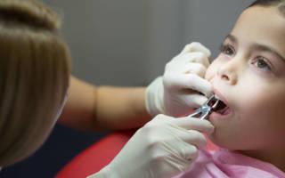 Удаление зуба у ребенка