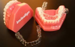 Капы для зубов Invisalign