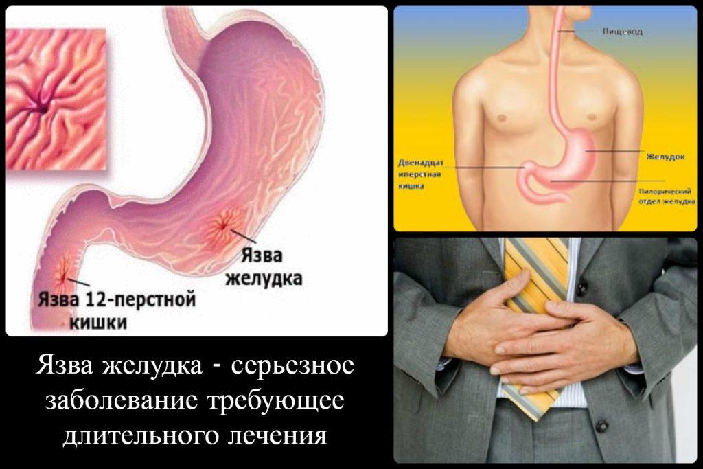 язва желудка симптомы и проявление