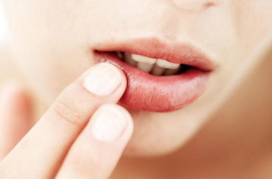 герпес на губе у женщины