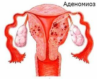 Изображение аденомиоза матки