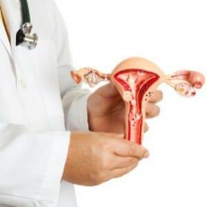 Макет матки в руках врача