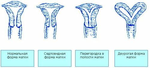 Виды строения матки
