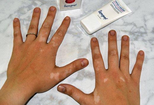 крем от белых пятен на руках