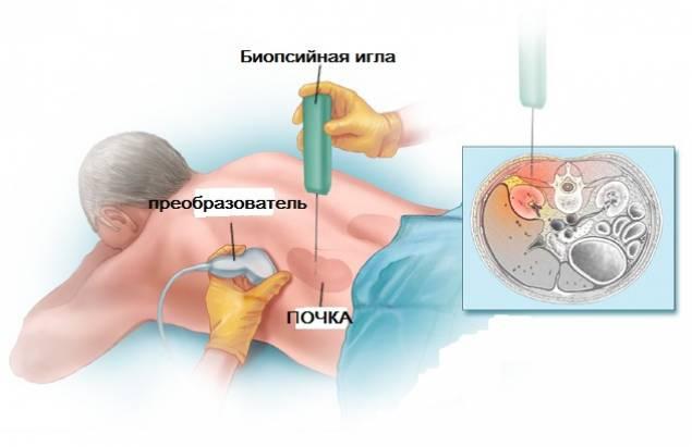 биопсия почки