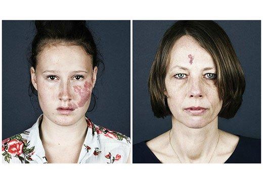винные пятна на лице у женщины
