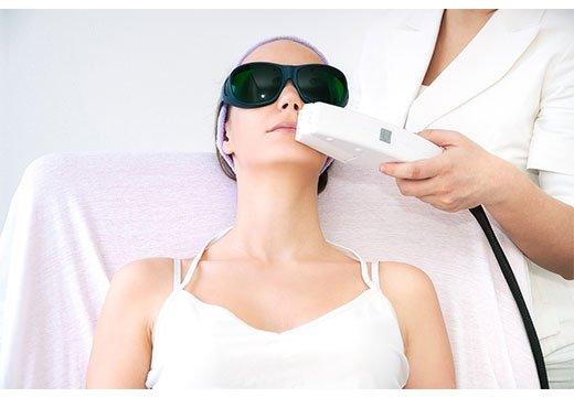 лазерная чистка лица