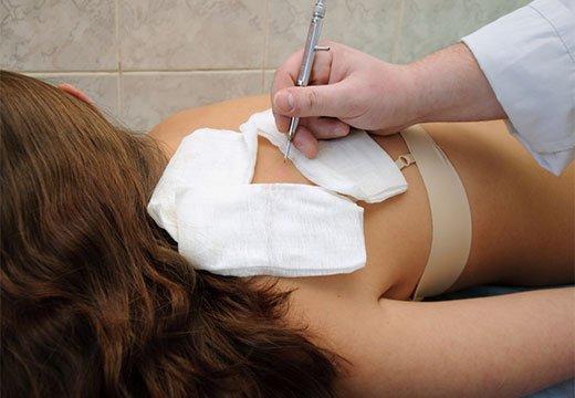 Хирургическое иссечение родинки на спине