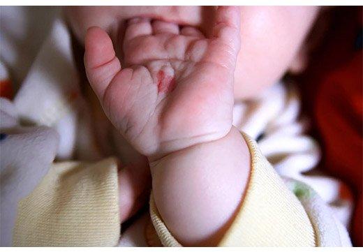 Родимое пятно на руке у ребенка