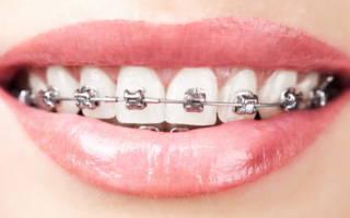 Ортодонтическое лечение