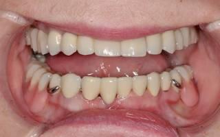 Бюгельный протез во рту