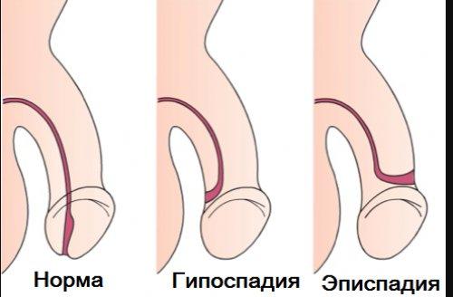 осложнение эписпадии