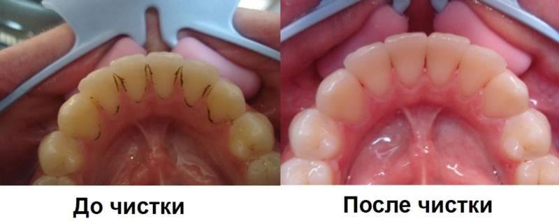 До и после механической чистки