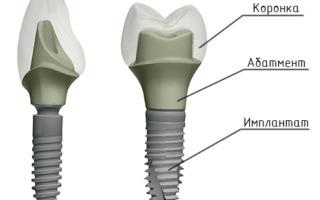 Конструкция импланта