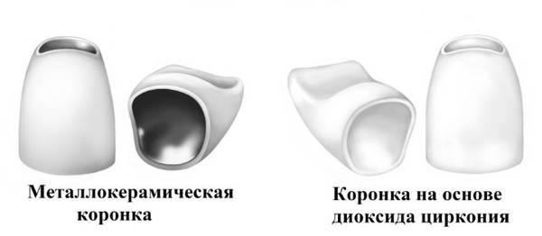 Каркасы коронок - металлокерамика и диоксид